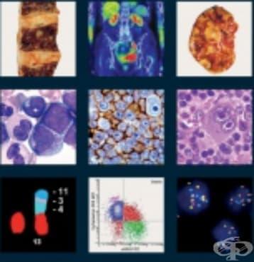 Тумори на лимфните възли и хемопоетичната система - изображение