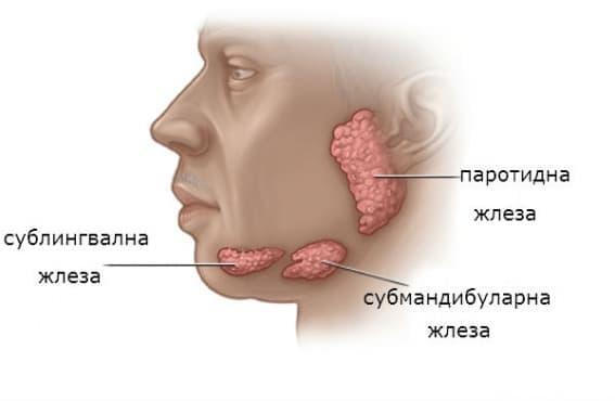 Тумори на слюнчените жлези  - изображение