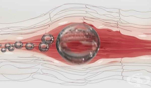 Въздушна емболия - изображение