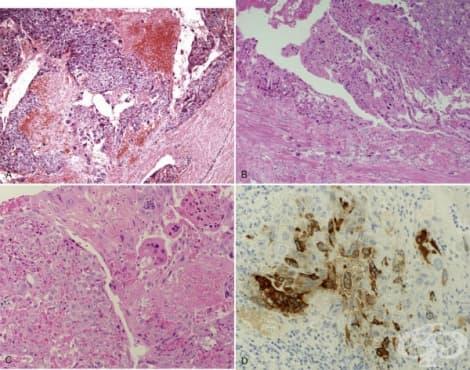 Заболявания на трофобласта - изображение