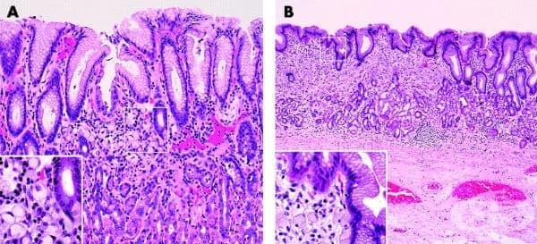 Злокачествени тумори на стомаха - изображение