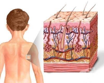 Физиология на кожата - изображение