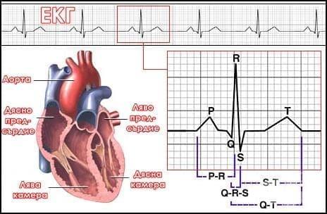 Електрокардиограма - изображение
