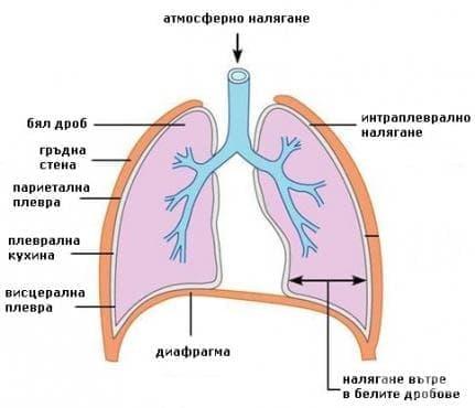 Интраплеврално налягане - изображение