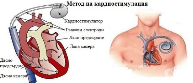 Метод на кардиостимулация - изображение