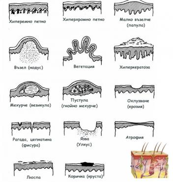 Обривни единици - изображение