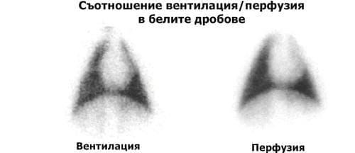 Промени в отношението вентилация/перфузия - изображение