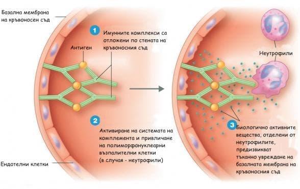 Възпаление, медиирано от имунни комплекси - изображение
