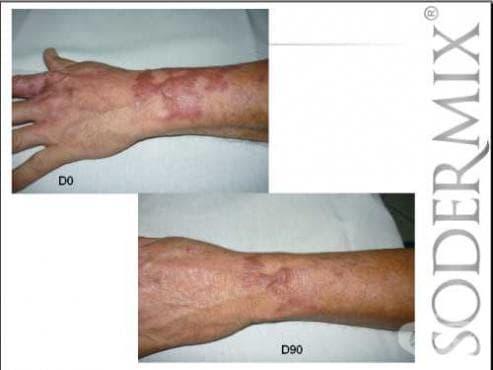 Содермикс - клинично доказана ефективност при белези, сърбеж и възпаления - изображение