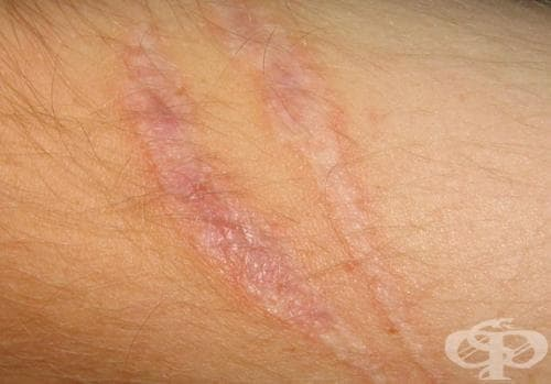 Скарекс - силиконов гел против белези и зачервяване след лазерни процедури - изображение
