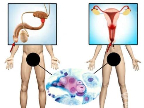 Хламидиална инфекция на гениталиите