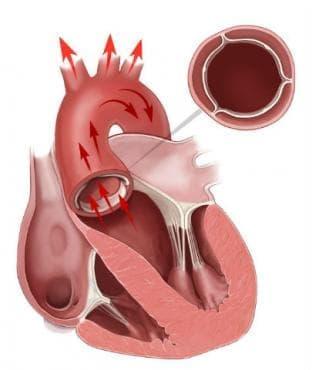 Сърдечни клапни пороци