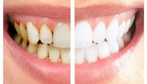 Зъбен камък
