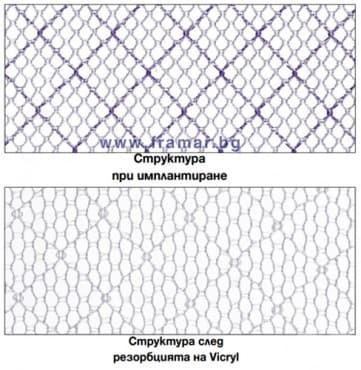 Изображение към продукта ХИРУРГИЧНО ПЛАТНО VYPRO II 10 см. / 12 см.