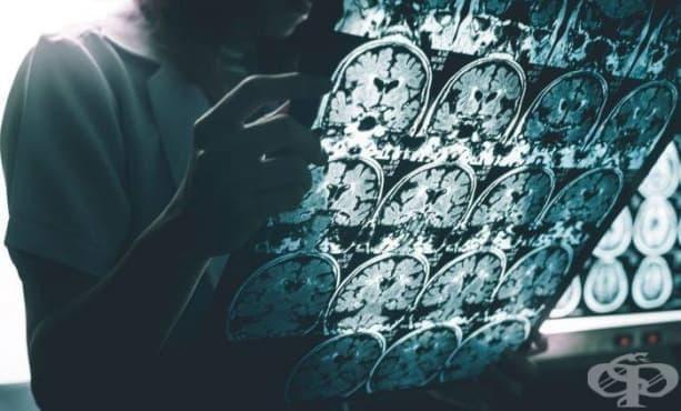 Може ли травматичното мозъчно увреждане да доведе до болестта на Алцхаймер - изображение