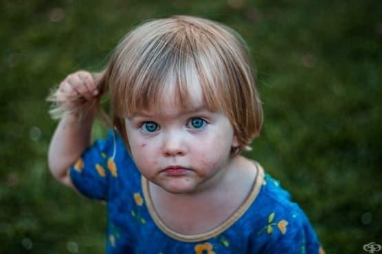 Трихотиломанията при децата – симптоми, рискови фактори и лечение - изображение
