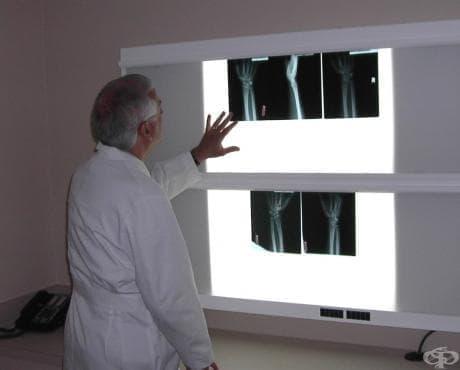 Артритът и съвременното му лечениe - изображение