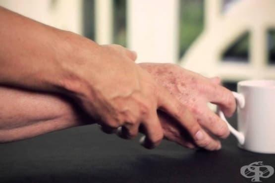 Симптомите на болестта Паркинсон - как да открием заболяването? - изображение