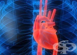 Сърдечна саркоидоза - изображение