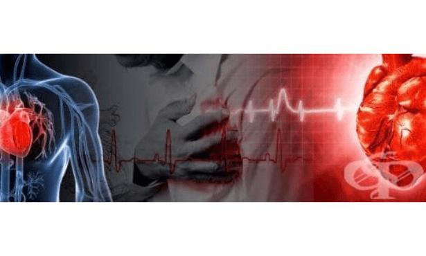 Проверете какво знаете за инфаркт на миокарда! Знаете ли как да окажете първа помощ? - изображение