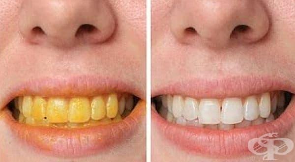 Направете си избелваща паста за зъби от куркума и лимоново масло  - изображение