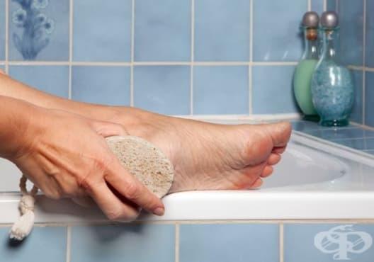 Използвайте 11 изобретателни начина за премахване на мазоли и пришки по краката - изображение