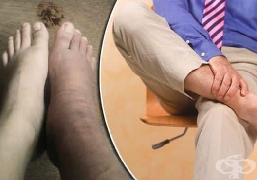 9 проблеми със здравето на краката, които могат да сигнализират за сериозни заболявания - изображение