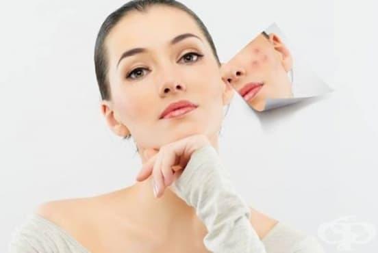 Заличете акнето по кожата с масло от карамфил - изображение