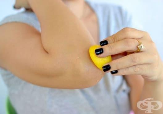 Използвайте 10 естествени начина за избелване на тъмните лакти и колена - изображение