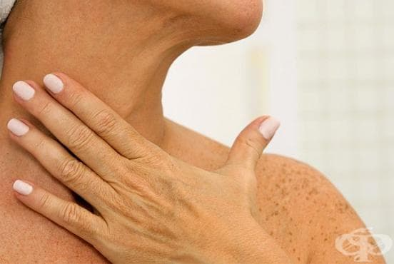 Погрижете се за шията си чрез 4 стягащи домашни процедури - изображение