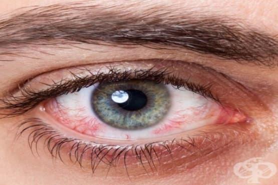 7 начина как да облекчите зачервени и подпухнали очи - изображение