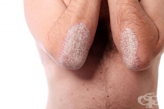 Облекчете симптомите на псориазис с помощта на 9 природни средства - изображение