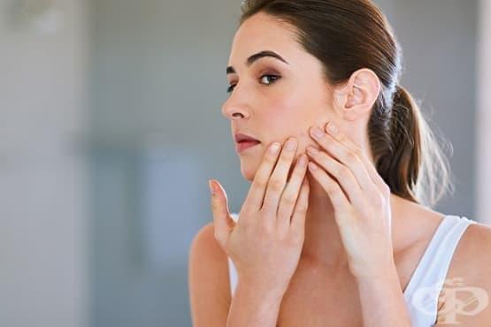Третирайте хормоналното акне с 6 натурални средства - изображение