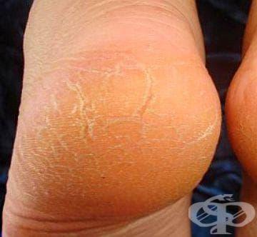 Ако петите ви се напукват, обърнете внимание на щитовидната жлеза и кръвната захар - изображение