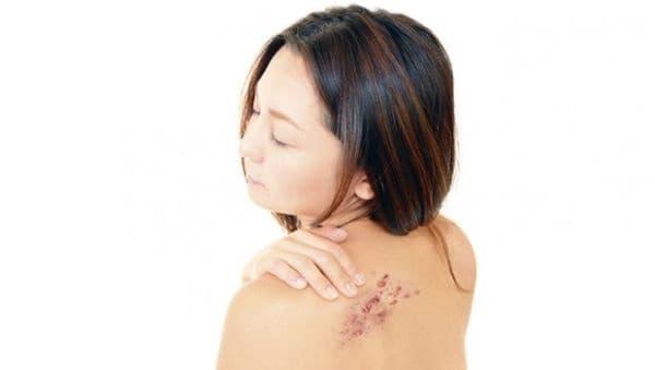 Заличете келоидните белези по кожата с чесън  - изображение