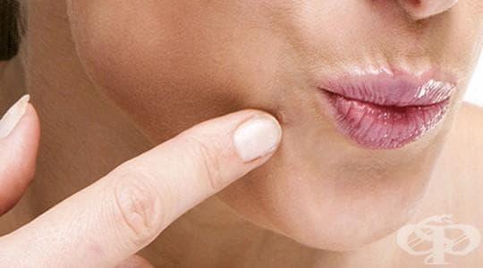 Използвайте три природни рецепти за безобидно премахване на брадавиците - изображение