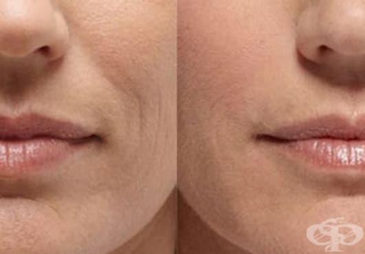 Премахнете назолабиалните бръчки с домашен крем от невен, зехтин и восък  - изображение
