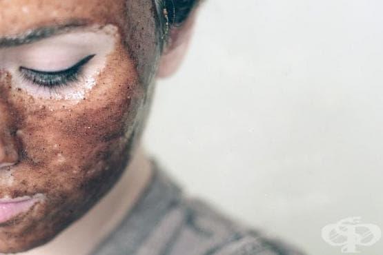 Елиминирайте белезите по лицето и изравнете тена на кожата с маска от мед, лимон, канела и индийско орехче - изображение