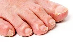 Гъбички по ноктите на краката ще излекувате за 2 месеца с оцет и сода - изображение
