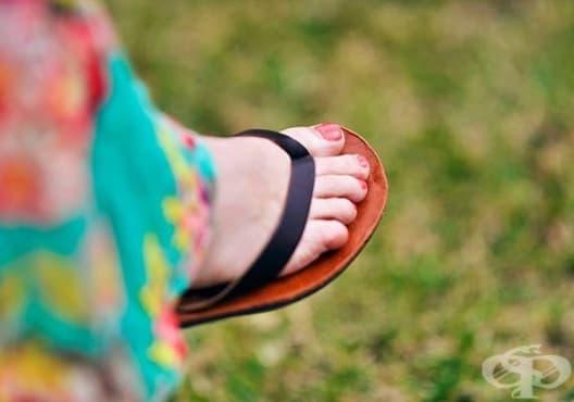 Избягвайте да носите джапанки поради 10 причини - изображение