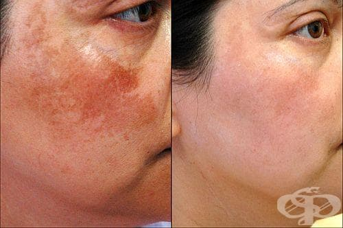 Изчистете пигментните петна по кожата си със сок от листа и пъпки на невен - изображение