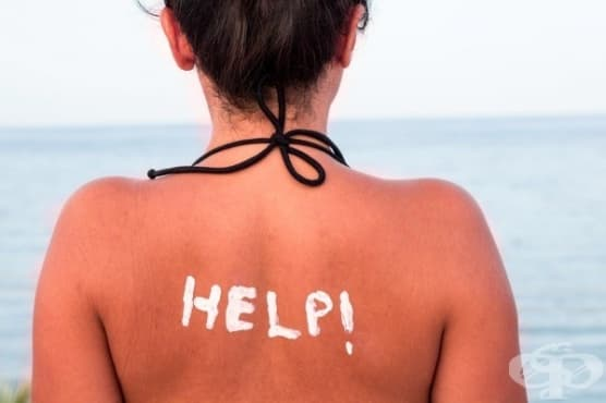 Облекчете слънчевото изгаряне с 4 ефикасни стъпки - изображение