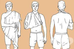 С триъгълна кърпа можете да прикрепите стерилна превръзка по цялото тяло - изображение