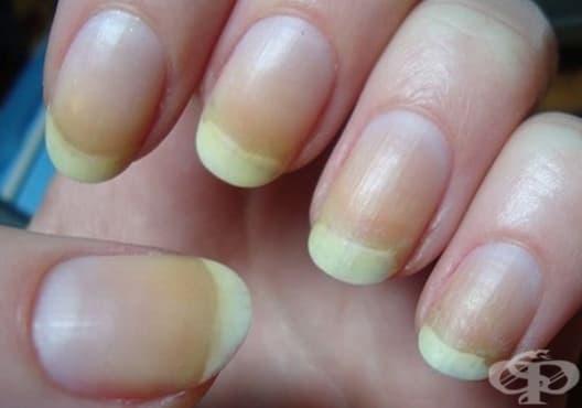 Използвайте 3 природни средства срещу пожълтяване на ноктите - изображение