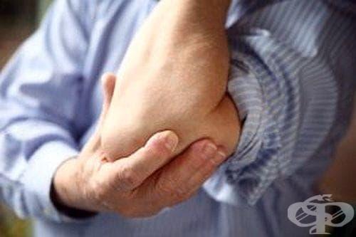 Изследвайте щитовидната си жлеза, ако кожата на лактите и коленете загрубява - изображение