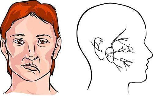 4 сигнала, по които да разберем, че човекът е поразен от инсулт - изображение