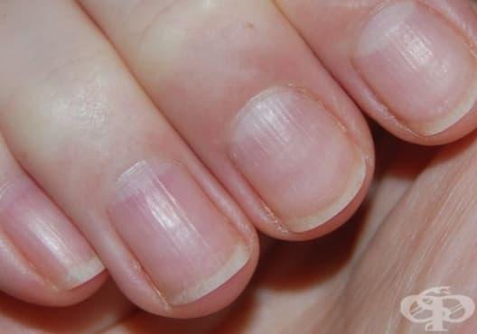 Какво говорят полукръговете в основата на ноктите за вашето здраве? - изображение