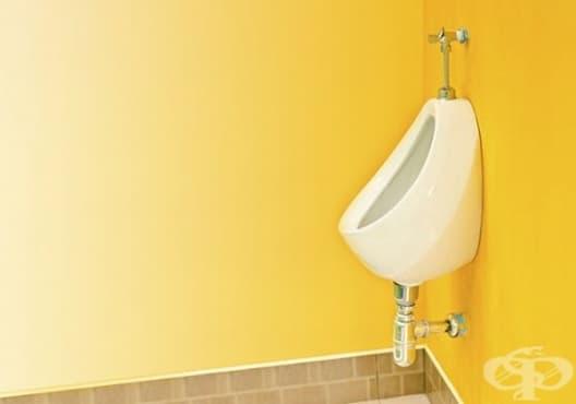 Какво разкрива цветът на урината за вашето здраве - изображение