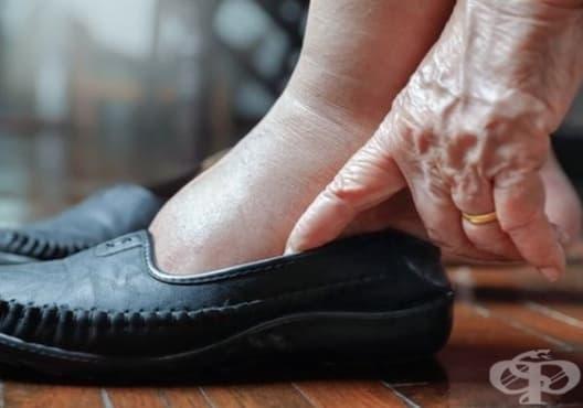 Какво разкрива подуването на краката за здравето - изображение
