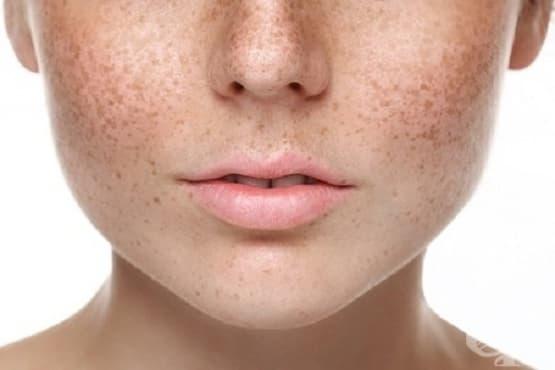 5 начина за премахване на лунички и петна по кожата - изображение
